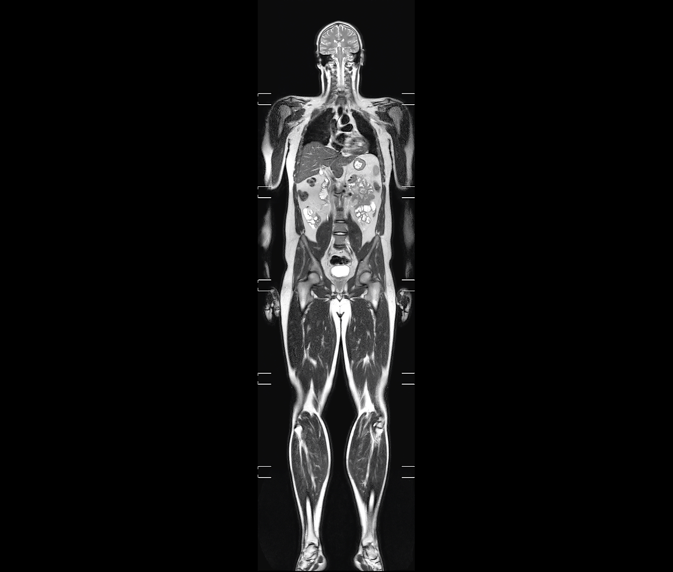 Whole-body MRI image
