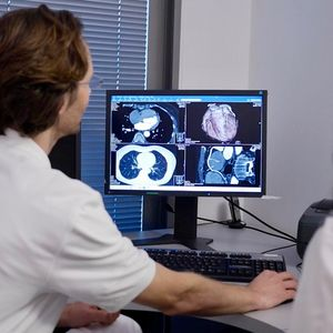Cardiac CT images